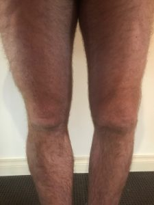 my dodgy knee
